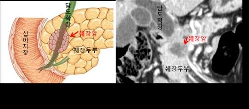 췌장암 CT 영상