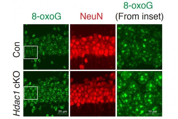 HDAC1 결핍 뉴런