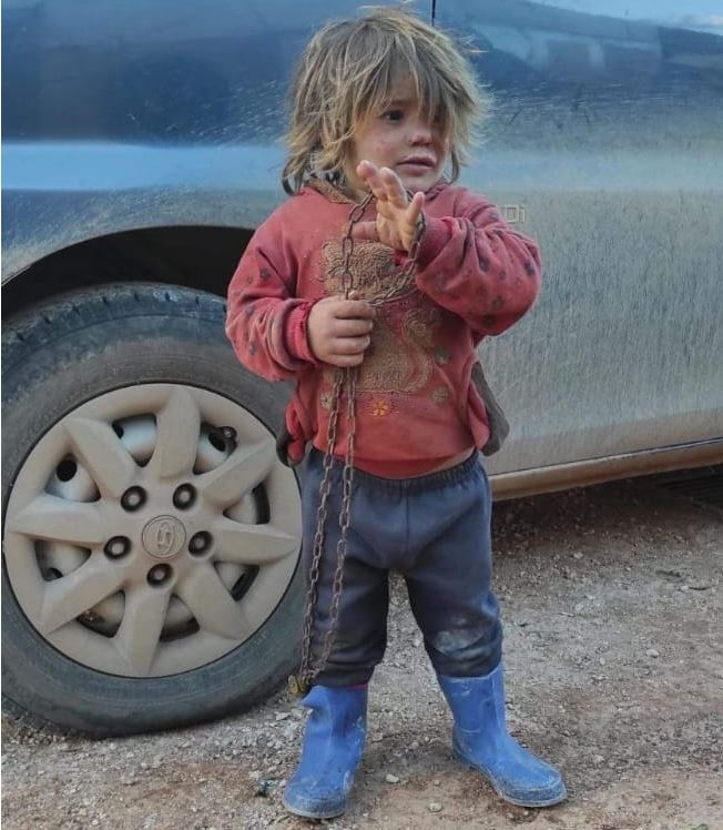 쇠사슬을 들고 있는 6살 시리아 난민 날라 알 오트만. 그는 사진이 찍힌지 몇달이 지나 음식을 급하게 먹다가 질식사했다. [시리아인권관측소(SOHR) 제공. 재판매 및 DB 금지]